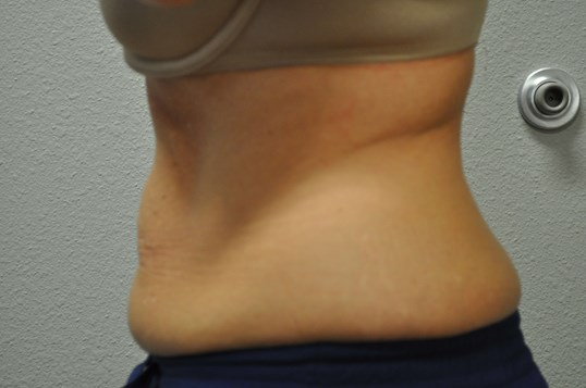 Side View of Abdomen Before