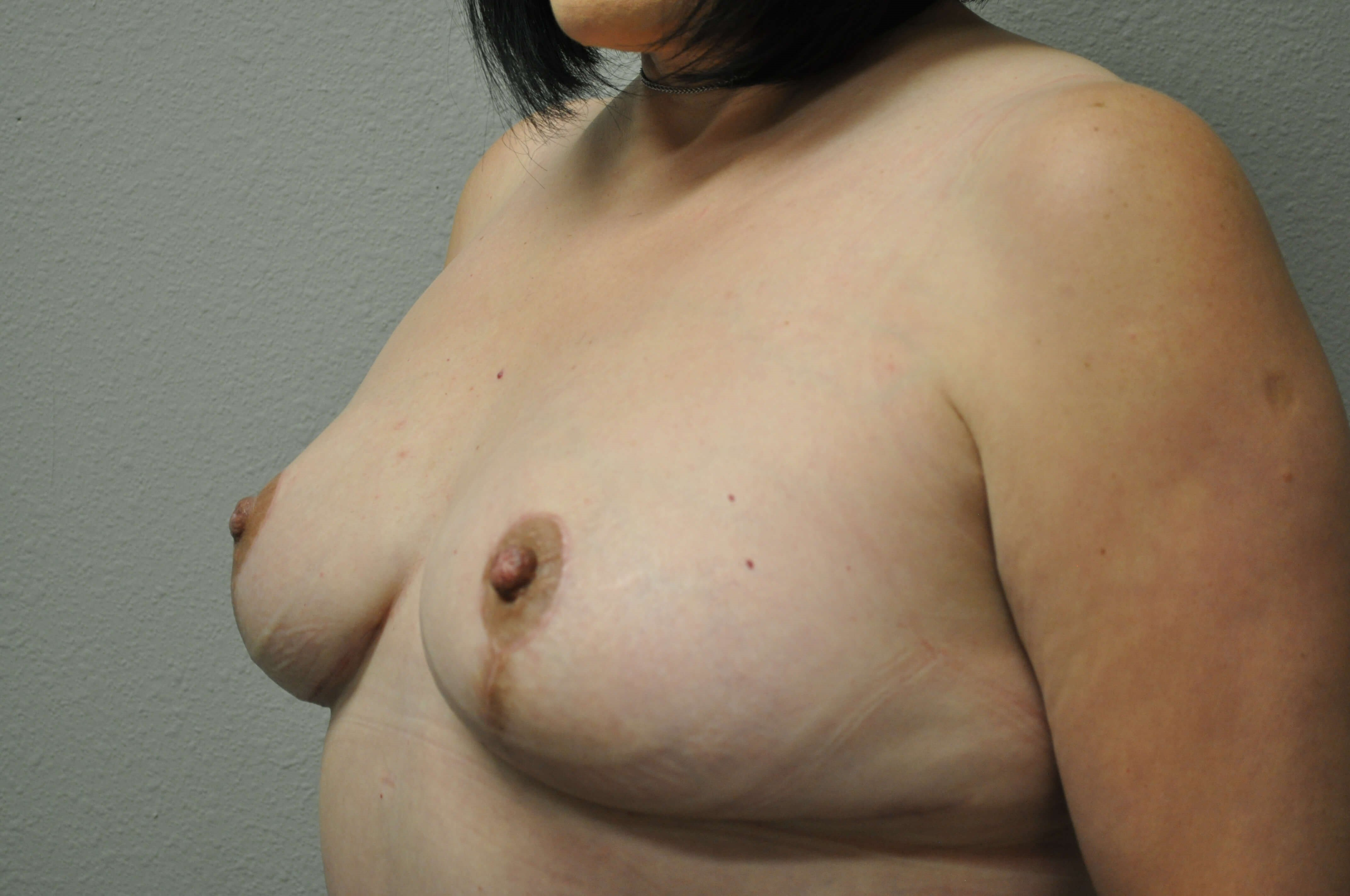 Oblique View of Breasts After