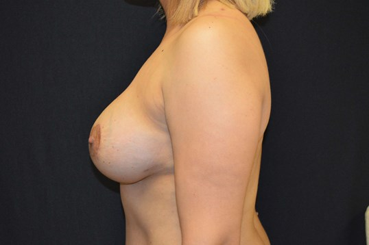 Side View of Breasts After