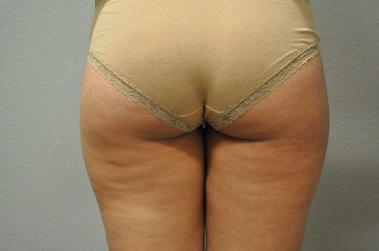 Back View Liposuction of Legs After
