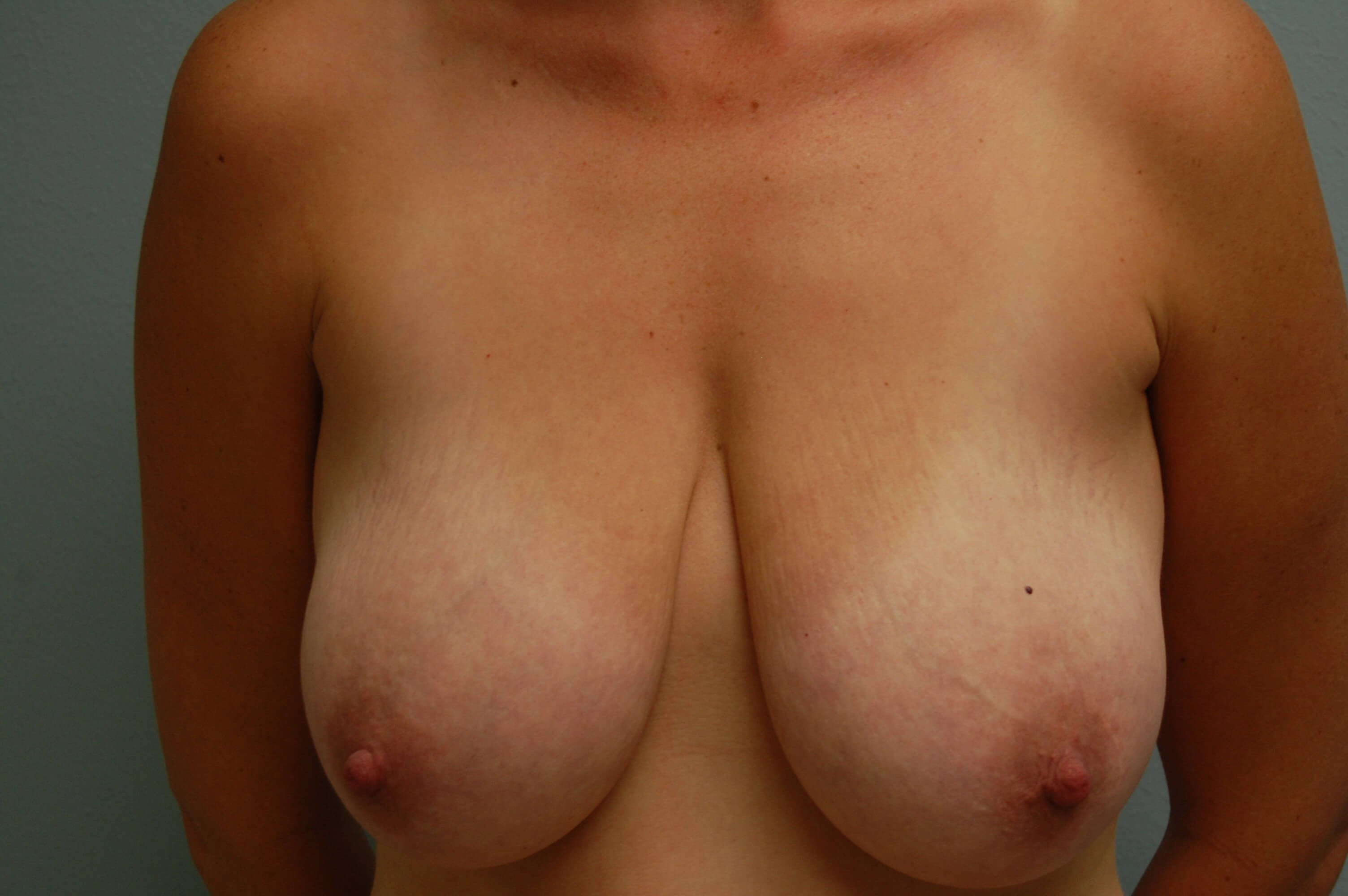 Front View of Breasts Before