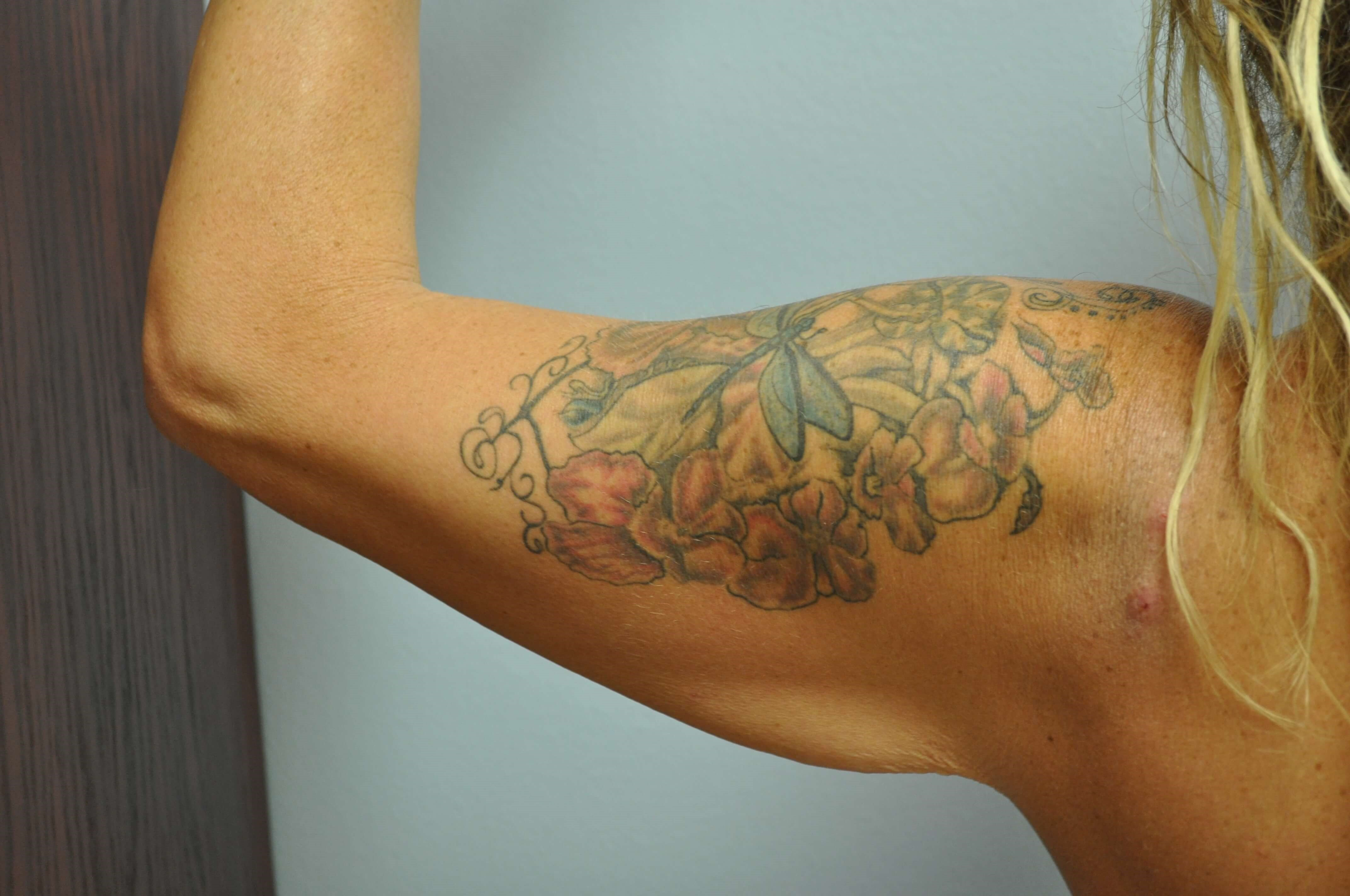 Back View of Arm Before