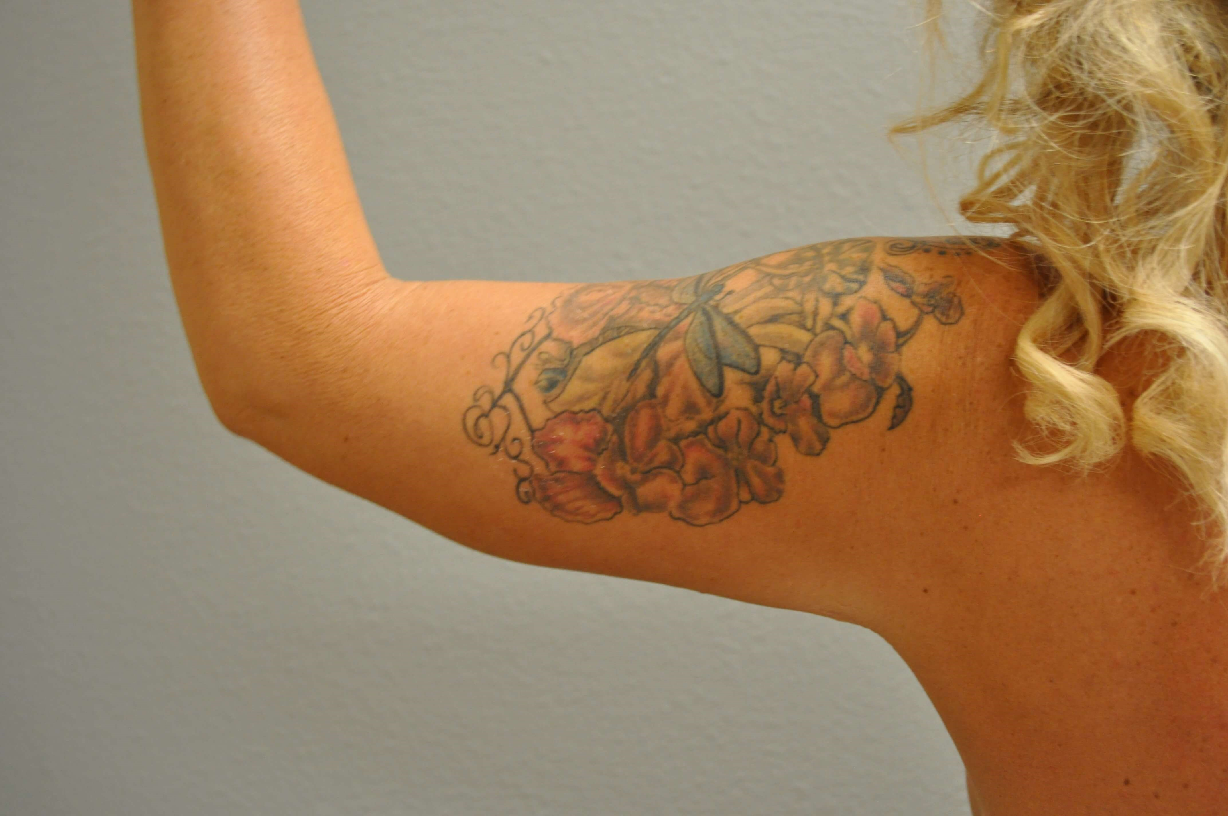 Back View of Arm After