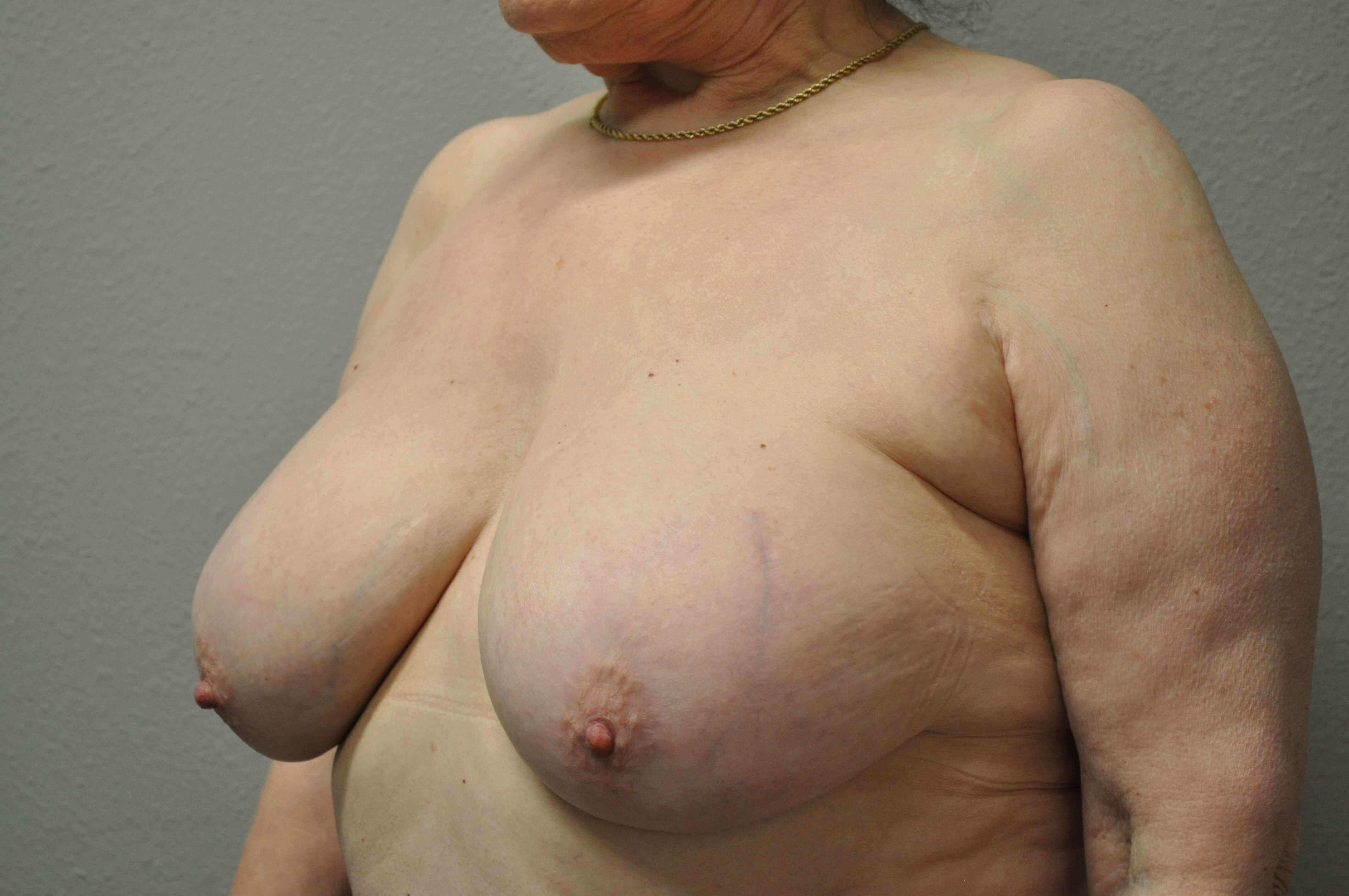 Oblique View of Breasts Before