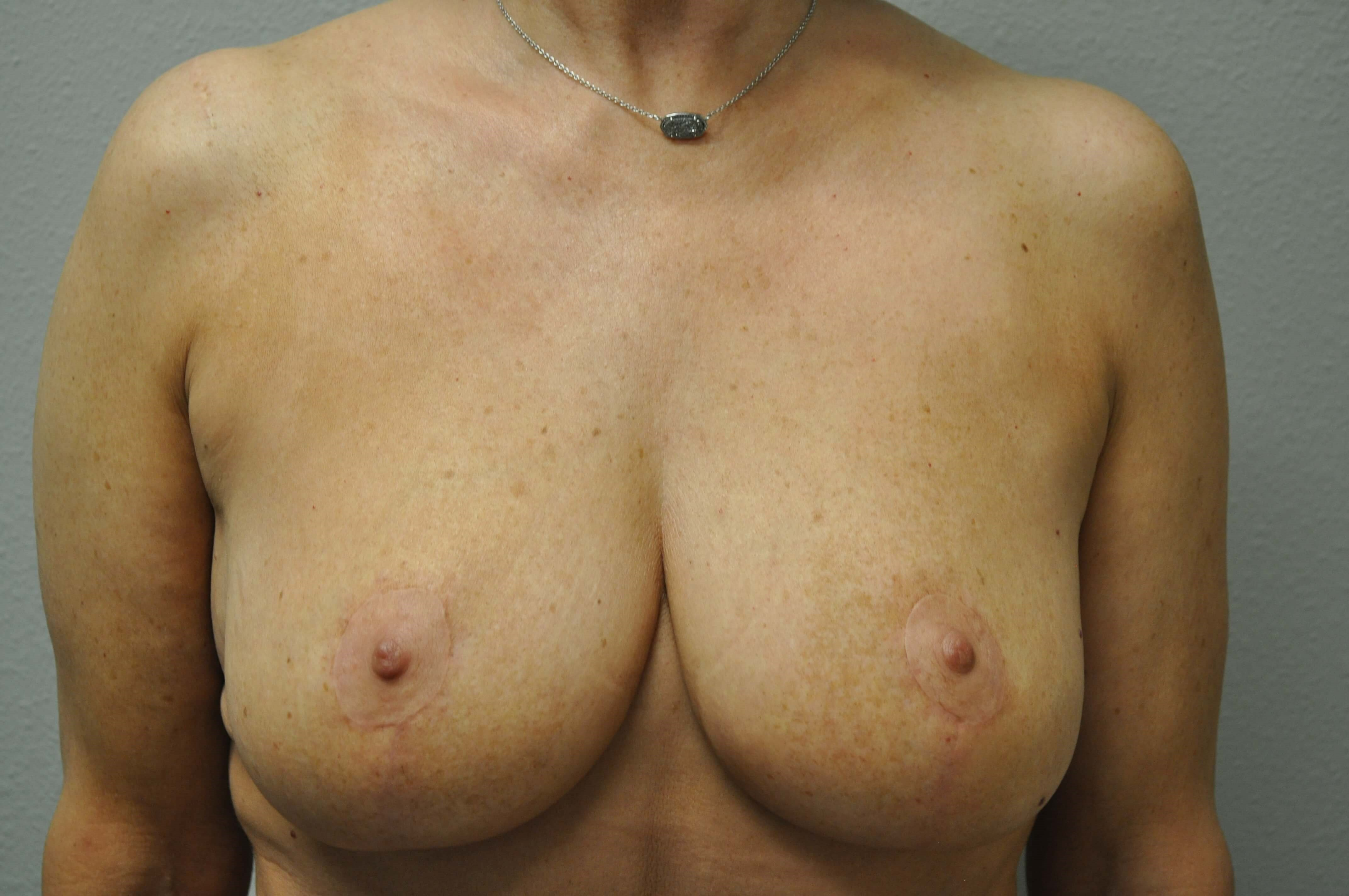 Front View of Breasts After