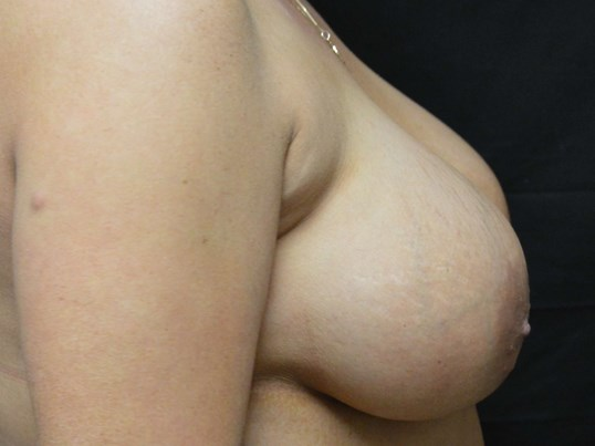 Side View of Breasts Before